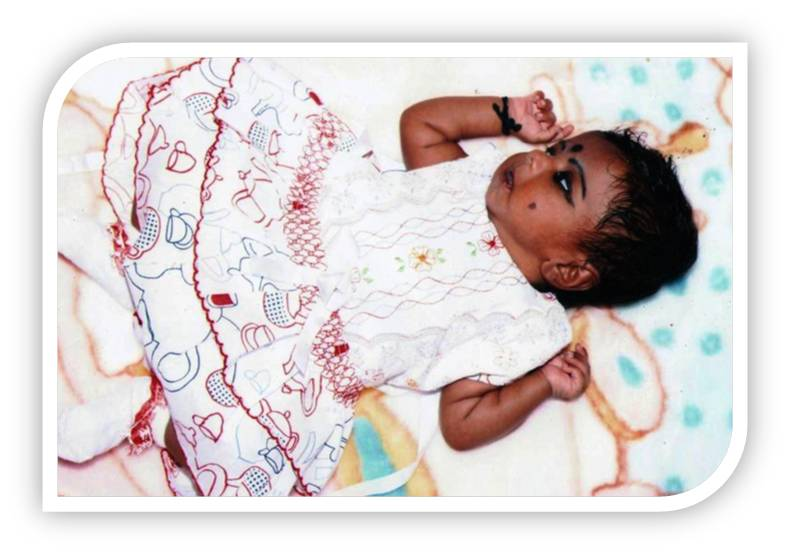 Saira before treatment of neonatal seizures